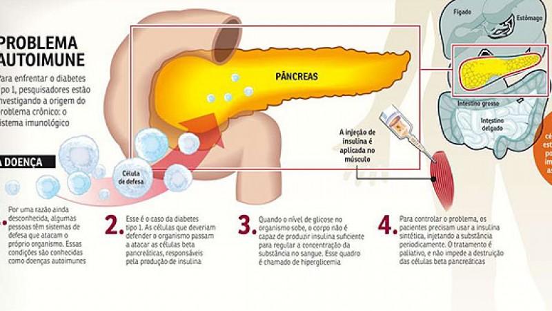 Vida e Saúde: Células do próprio paciente podem frear o diabetes tipo 1