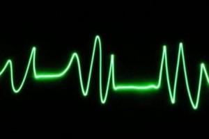Vida e Saúde: Quase 30% das mortes no Brasil são por doenças cardiovasculares