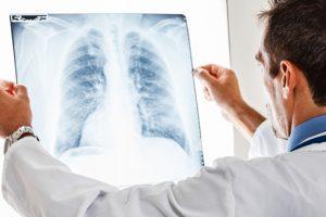 Brasil registra queda de casos de câncer de pulmão