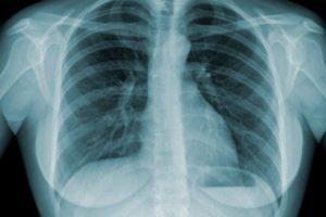 Ministério da Saúde lança campanha de combate à tuberculose