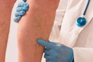 Varizes estão ligadas à herança genética, hormônios e obesidade