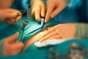Em oito meses, número de cirurgias eletivas cresceu 39,1% no Brasil