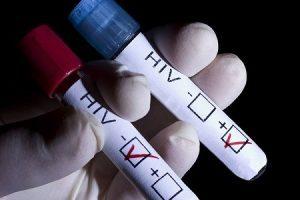 Novo medicamento para pacientes com HIV será testado