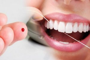 Diabetes e o implante dentário