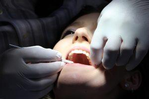 Nova técnica consegue regenerar esmalte dos dentes