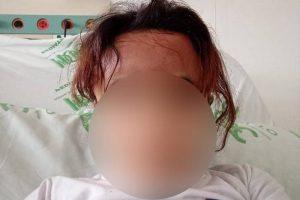 Vida e Saúde: Escova progressiva não pode ter formol nem ser feita em crianças; ENTENDA riscos